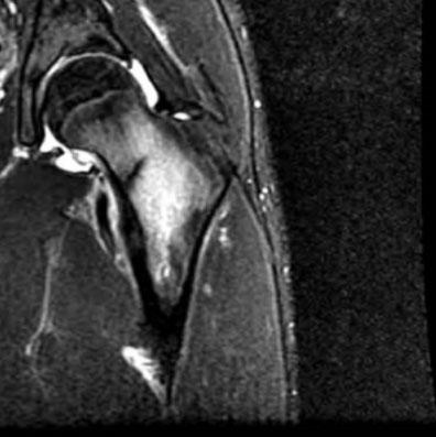Bone Stress Fracture
