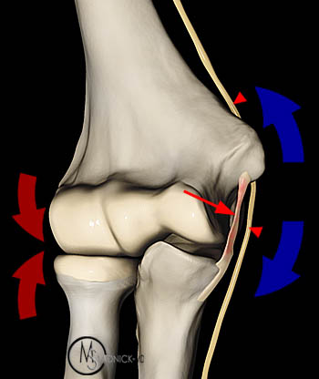 Elbow Pain in Baseball Players diagram